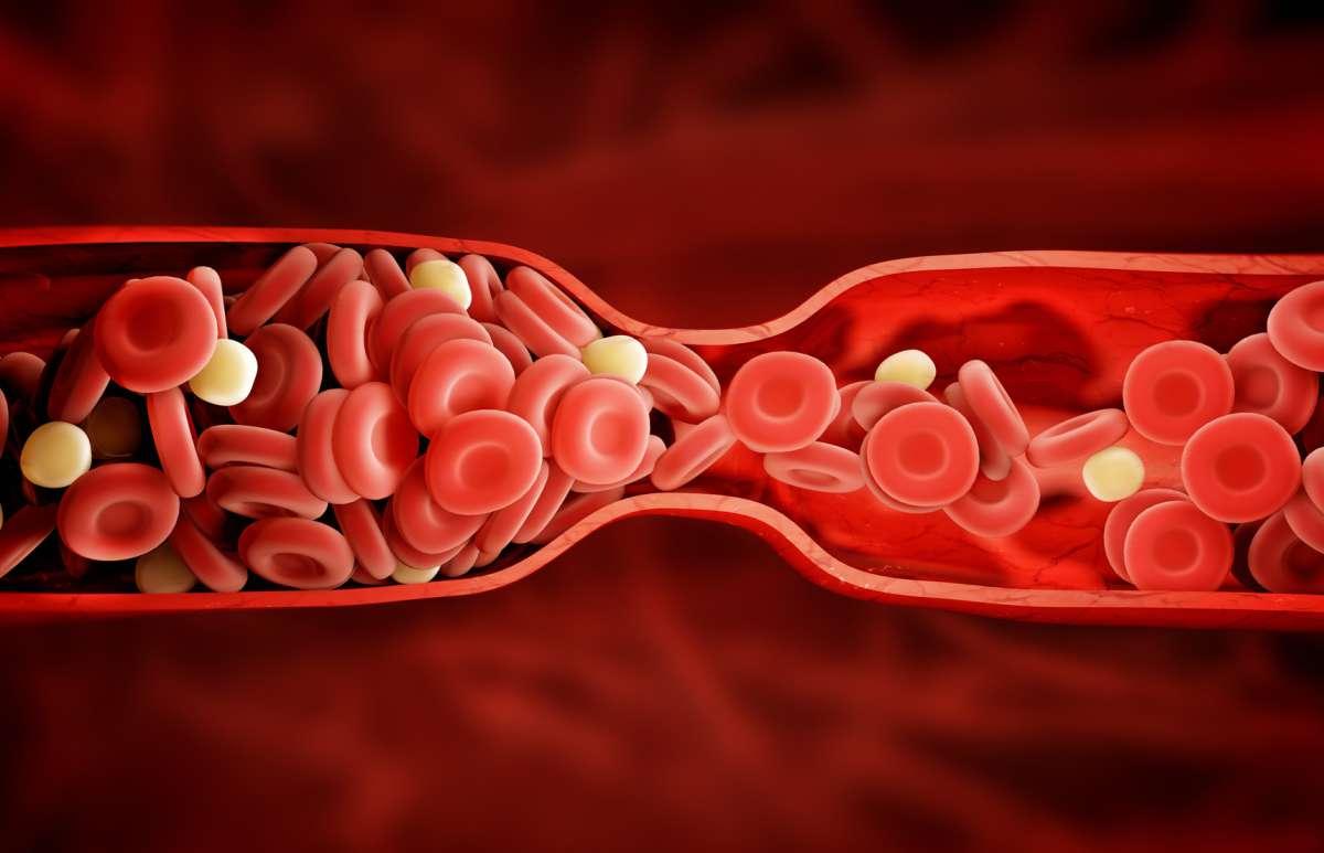 Cholesterol - zdjęcie partnera