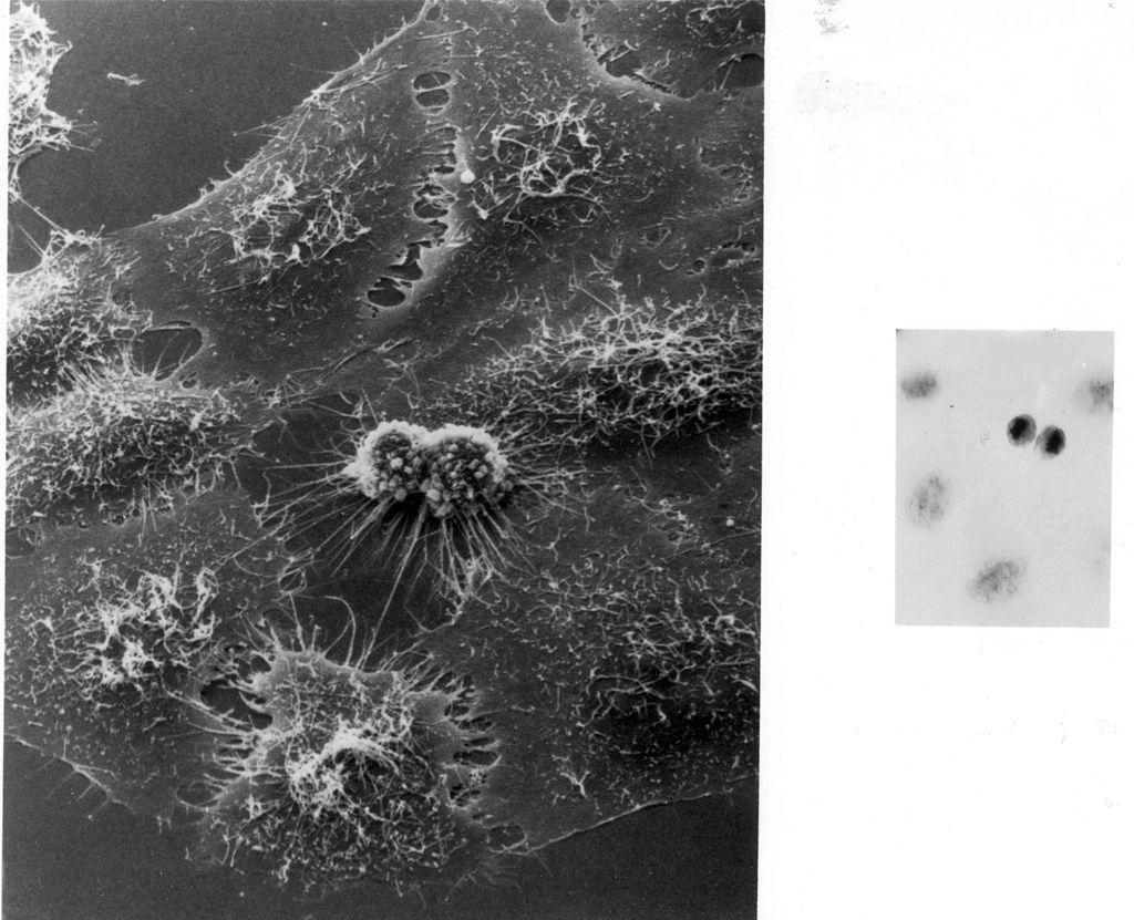 Podział komórek HeLa pod mikroskopem elektronowym http://pl.wikipedia.org/