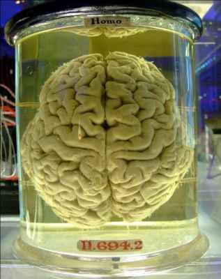 Human_brain_in_a_vat.jpg