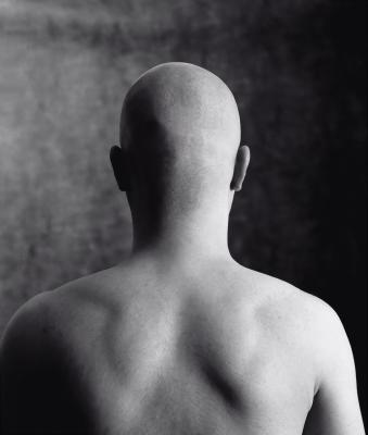 bald head, by Suat Eman/www.freedigitalphotos.net