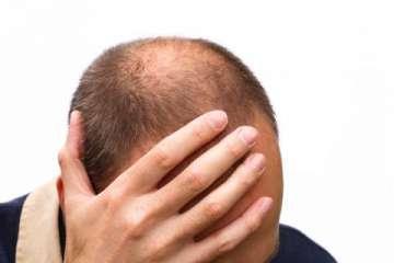 Alopecia - zdjęcie partnera