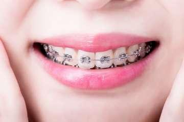 Aparat ortodontyczny - zdjęcie partnera