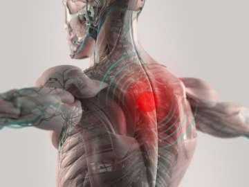 Zapalenie stawów kręgosłupa - zdjęcie partnera